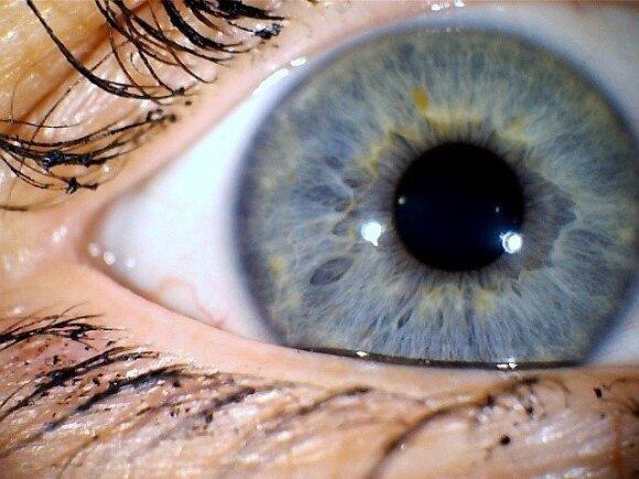 Akių siunčiami signalai: gali įspėti net apie baisiausias ligas