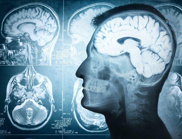 Neurochirurgas: štai ko iš tikrųjų reikia mūsų smegenims