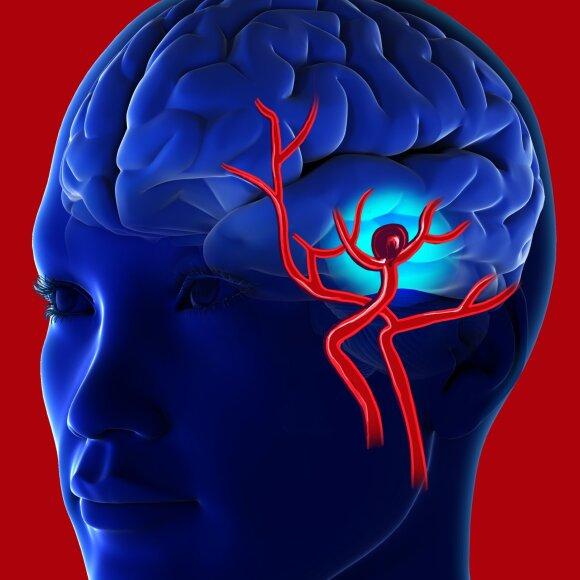 Galvos smegenų aneurizma