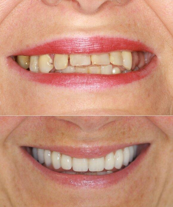 Danutės dantys prieš ir po implantacijos