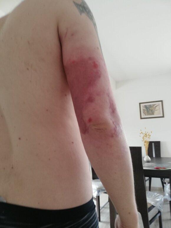 Мужчину с сильными болями выставили из Шяуляйской больницы: это аморально