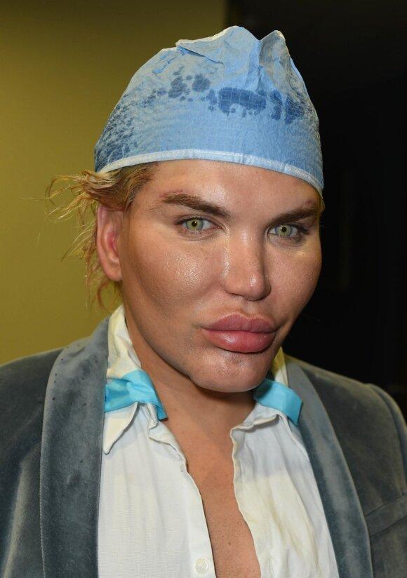Garsusis plastinių operacijų dievukas pasirodė visu savo gražumu