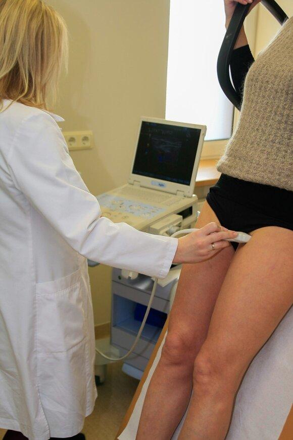 Venų tyrimas ultragarsu