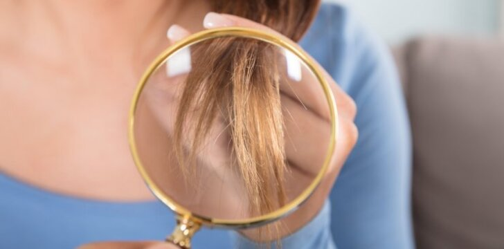 Ko trūksta organizmui, jei slenka ir lūžinėja plaukai?