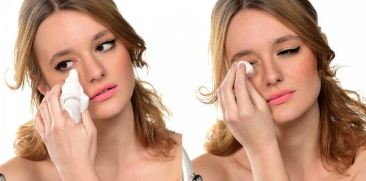 Nepatikėsi, kuo vienai moteriškosios lyties atstovei baigėsi netinkamas akių makiažo valymas (FOTO)