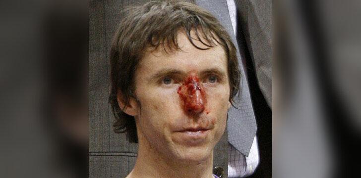 "Steve'o Nash'o (""Suns"") trauma sutrukdė Fynikso klubui nugalėti"