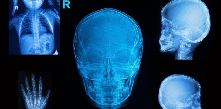 Ar pavojingi vaikams rentgeno tyrimai?