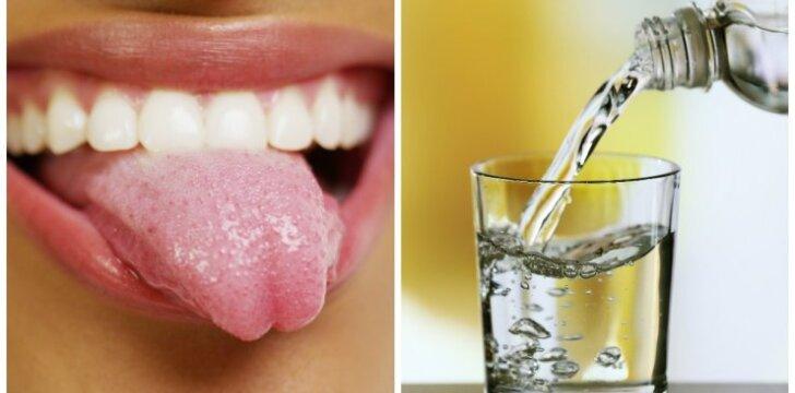 Ką apie tavo sveikatą byloja liežuvio spalva