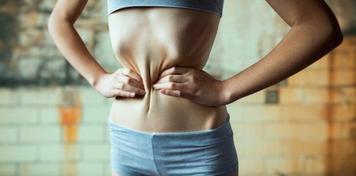 Mirtina kova su kalorijomis: niekas neįsivaizduoja, kokia buvau laiminga sverdama 35 kilogramus