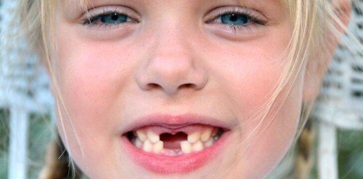 """Ką daryti, jei vaikui išlūžo ar buvo išmuštas dantukas? <sup style=""""color: #ff0000;"""">Odontologės komentaras</sup>"""