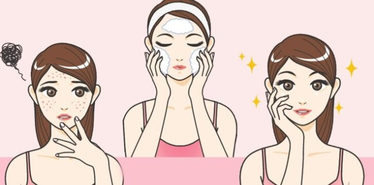 5 greitos veido kaukės, kurios padės išgydyti spuoguotą ir išbertą odą