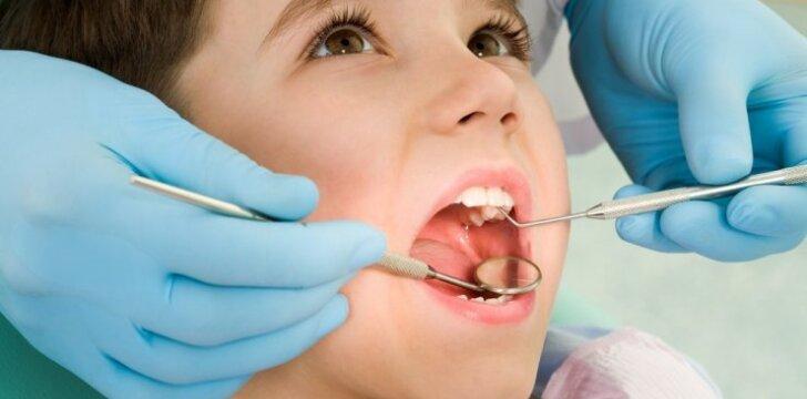 Nemokamas dantų silantavimas: ką svarbu žinoti