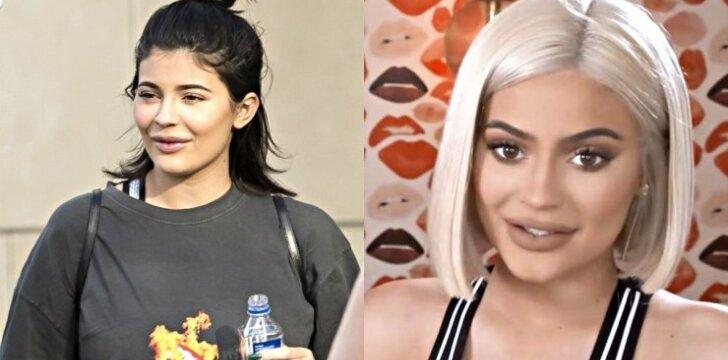 Gerbėjai pastebėjo pirmą Kylie Jenner šalutinį lūpų putlinimo poveikį