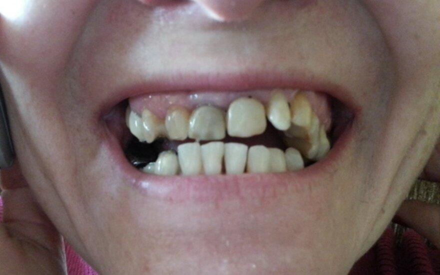 Senjorų dantų protezai – vaikų burnose
