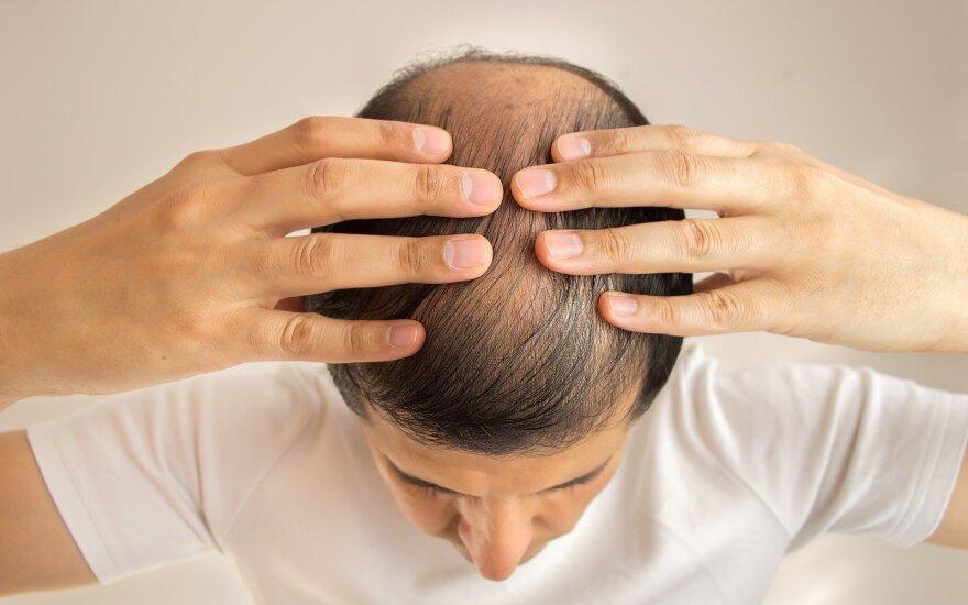 7 būdai sustabdyti plaukų slinkimą