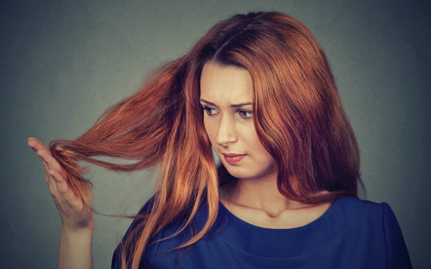Nuovargis, dantų griežimas, slenkantys plaukai – greičiausiai dėl visko kaltas vienas veiksnys