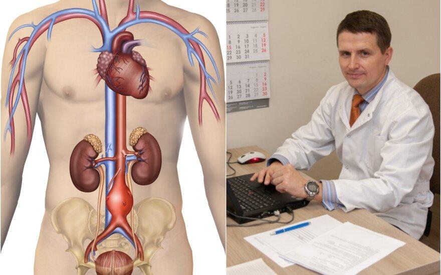 Linas Velička papasakojo apie pilvo aortos aneurizmą