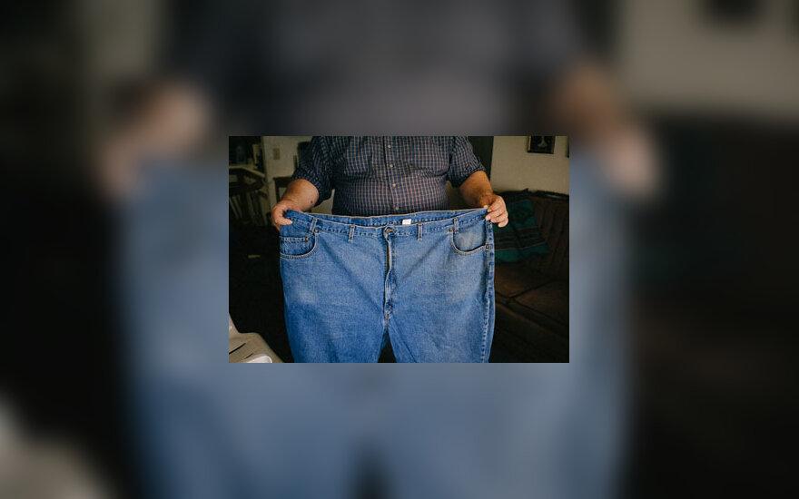 Nutukimas, viršsvoris