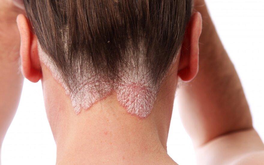 Neperprantama odos liga: kartais neatlaiko ir sąnariai