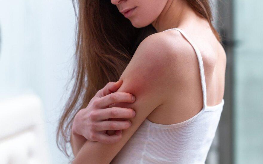 Psoriazinis artritas