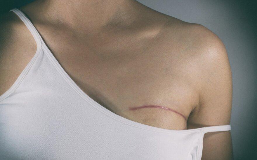 Naujo gyvenimo puslapį moteris atvertė po krūties operacijos