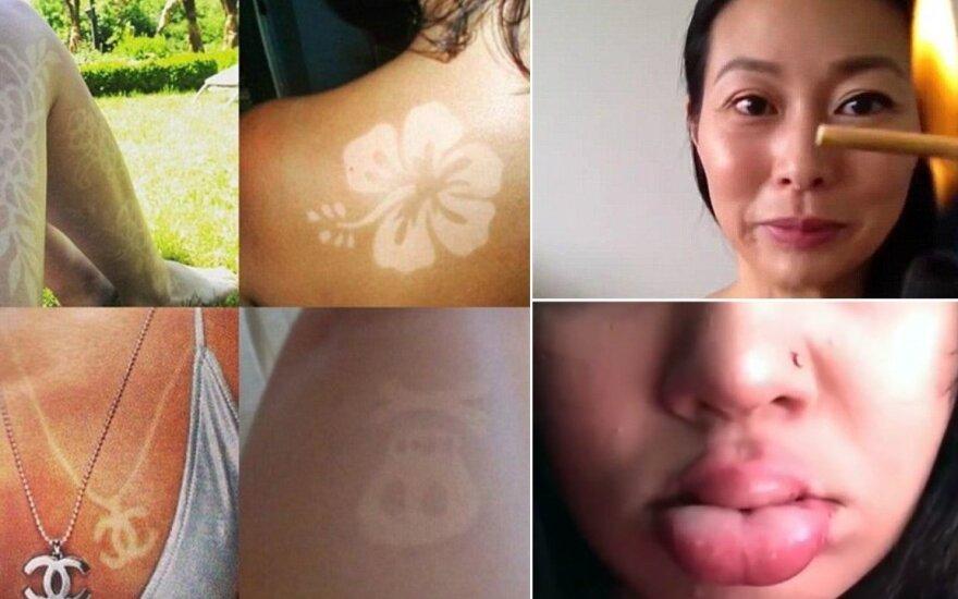 Pavojingiausios 2015 m. grožio tendencijos: nuo plaukų deginimo iki ištinusių lūpų