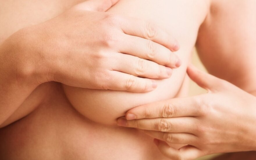 Krūties vėžio epidemiją lemia šiuolaikinis moterų gyvenimo būdas?