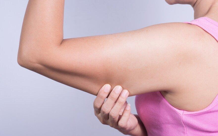 Patikimas būdas atsikratyti nukarusių riebalų ant rankų