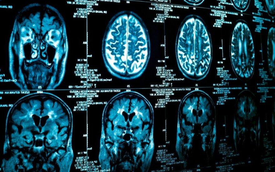 Brain tomography