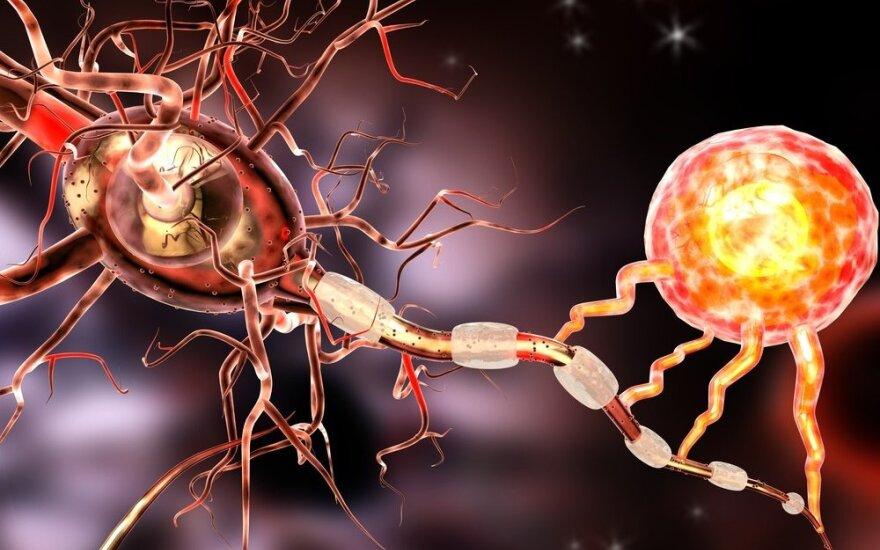 Galvojo, kad išsėtinė sklerozė - senų žmonių liga