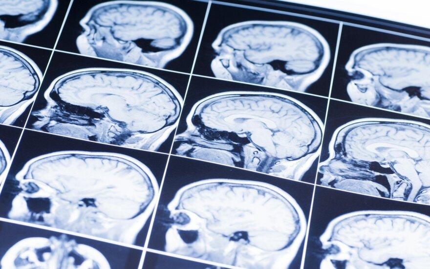 Ar greitos jūsų smegenys?
