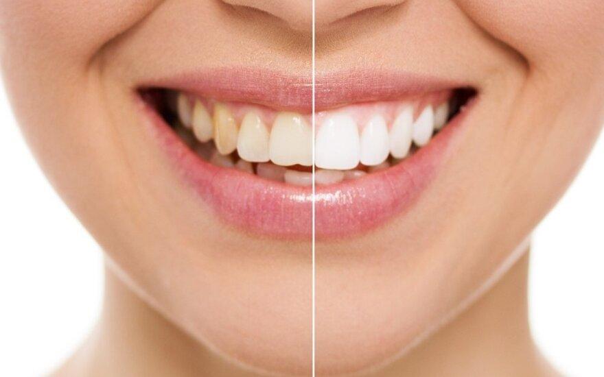 9 gražių dantų paslaptys: žinant jas turėti holivudinę šypseną paprasta