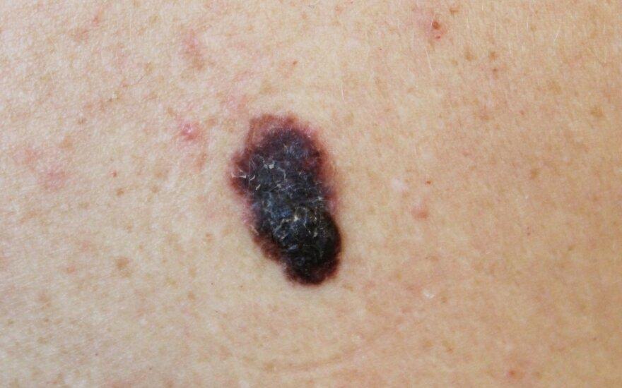 Odos vėžys