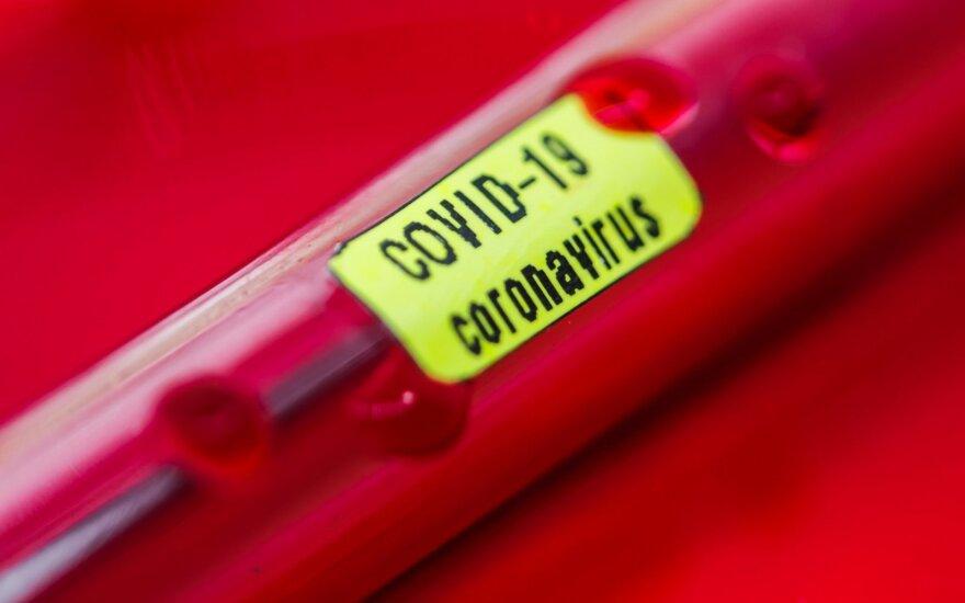 Teisininko komentaras. Ar darbdavys gali rinkti informaciją dėl rizikos užsikrėsti koronavirusu?