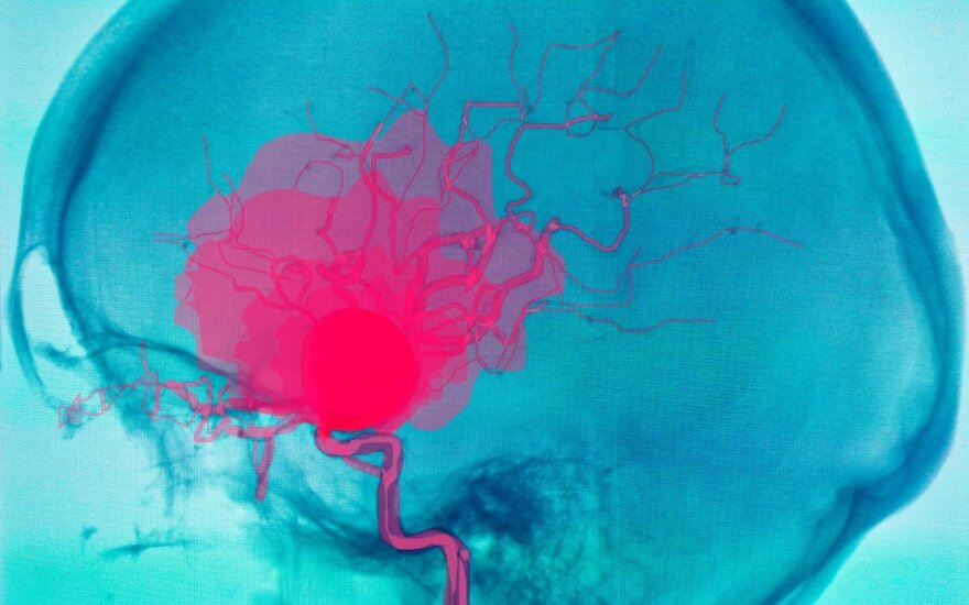 Smegenų aneurizma