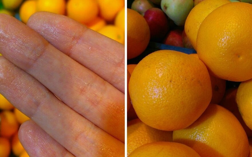 """Po vaisių apžiūros – """"blizgučiai"""" ant rankų"""