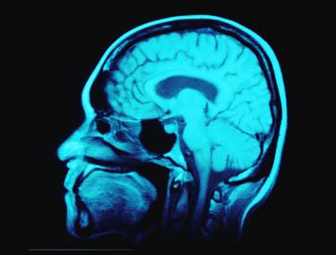 kas atsakinga už erekciją smegenyse