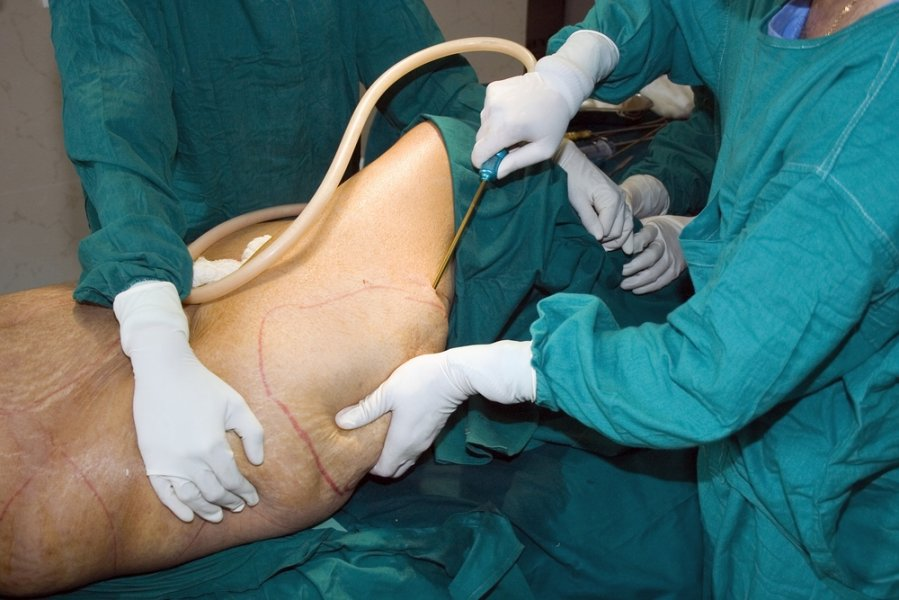 pilvo riebalų pašalinimo operacija