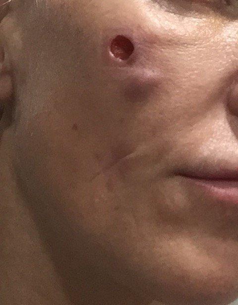 MM komplikacijos po plastinės operacijos