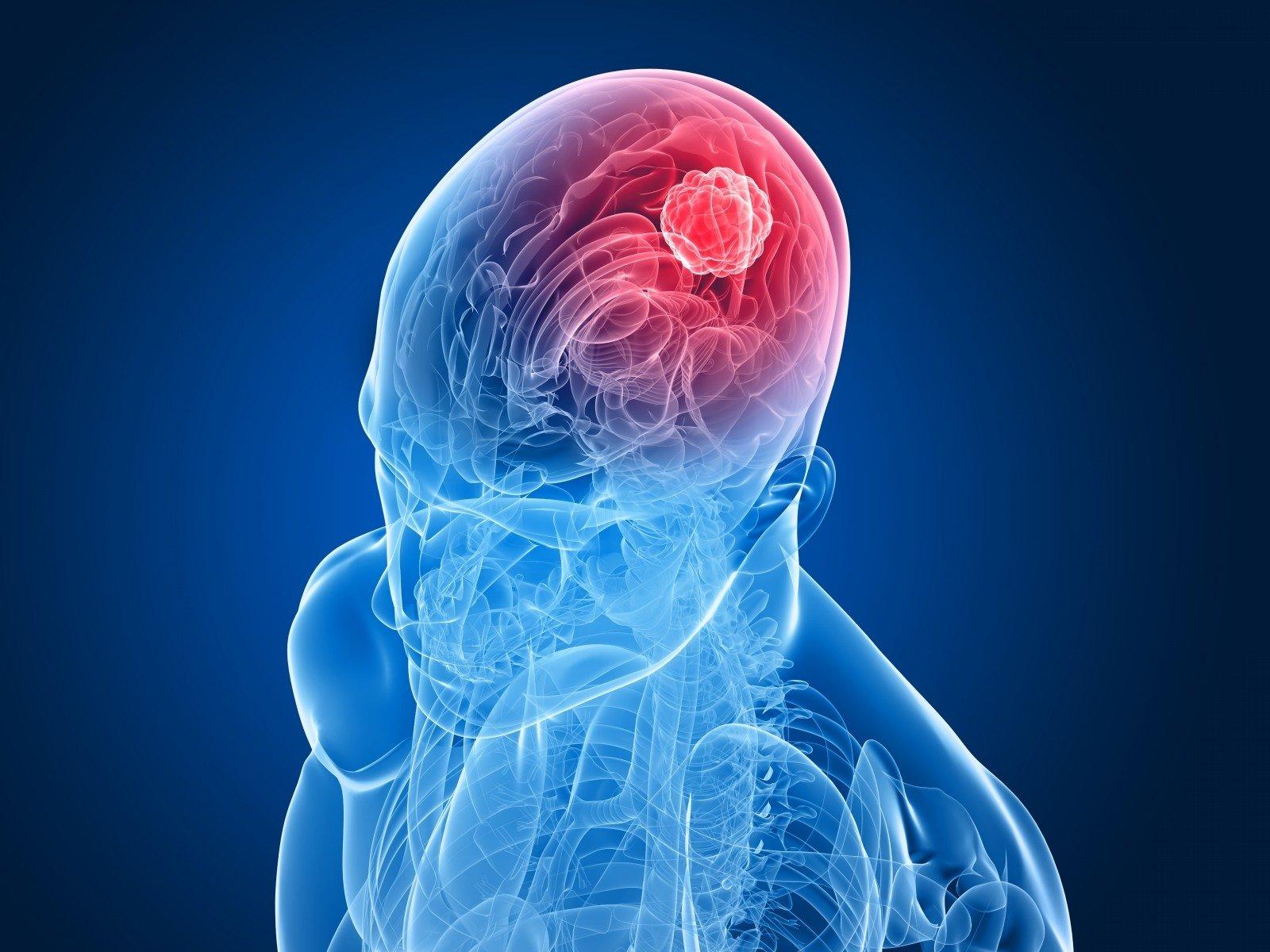 Galvos smegenų navikai