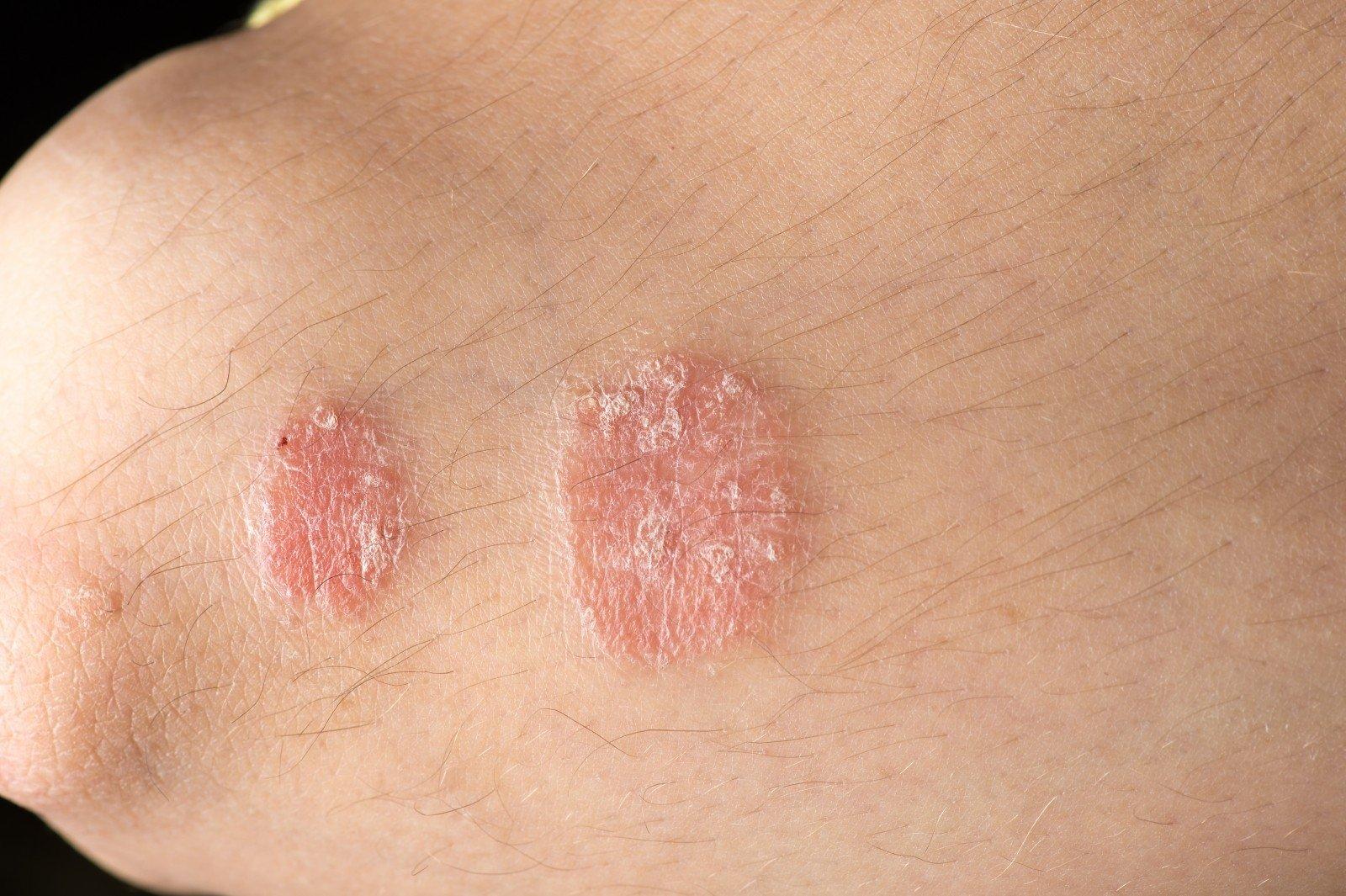 Šunų odos ligos grybelis